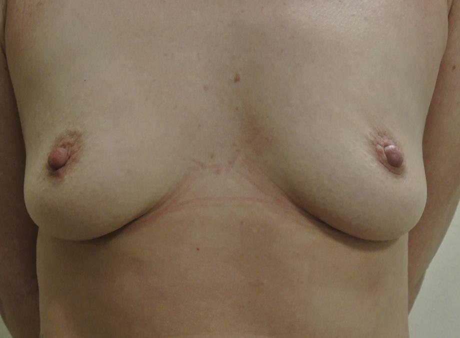 Pre-op breast augmentation