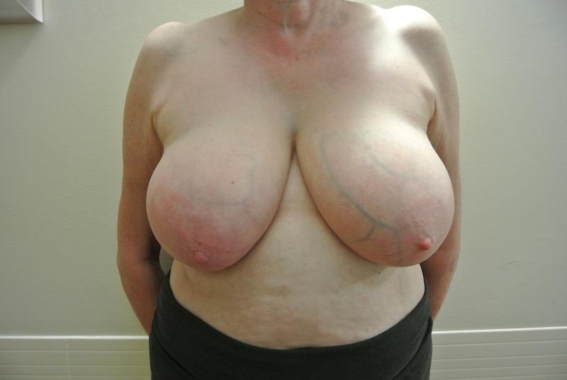 Pre-op breast reduction