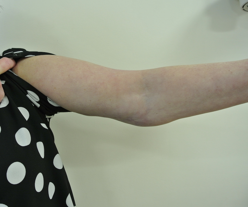 Post-op arm reduction left