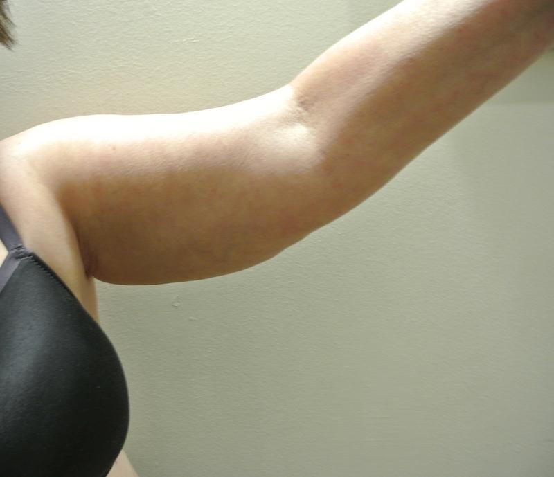 Pre-op arm reduction left