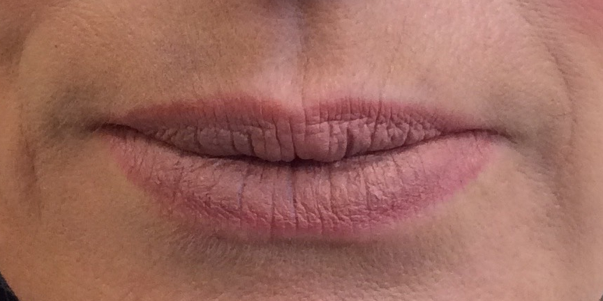 1 week post-filler injection upper and lower lips