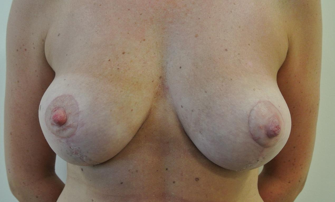 Post-op breast lift (mastopexy)