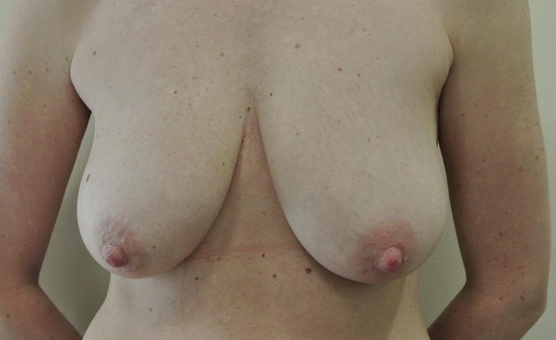 Pre-op breast list (mastopexy)