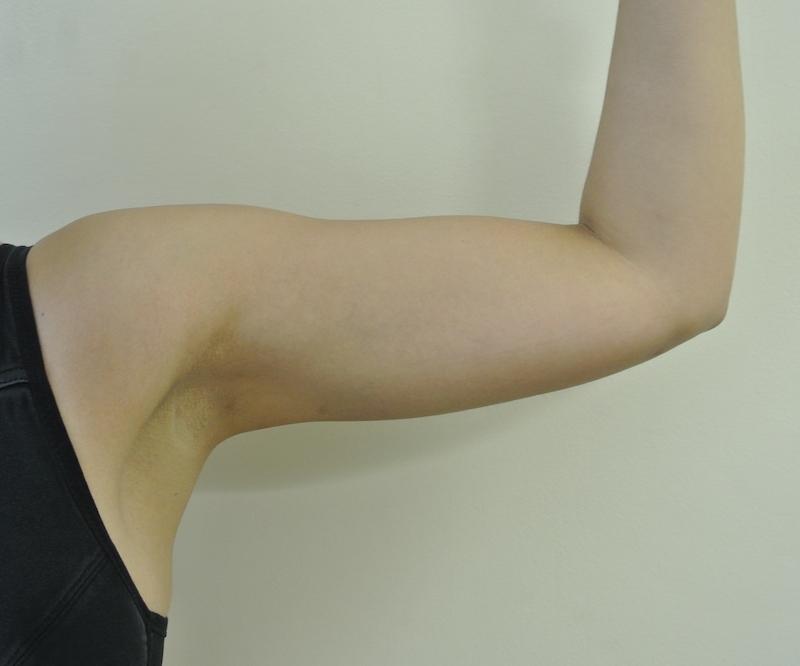 Post-op liposuction left arm
