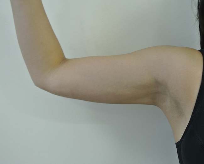 Post-op liposuction right arm