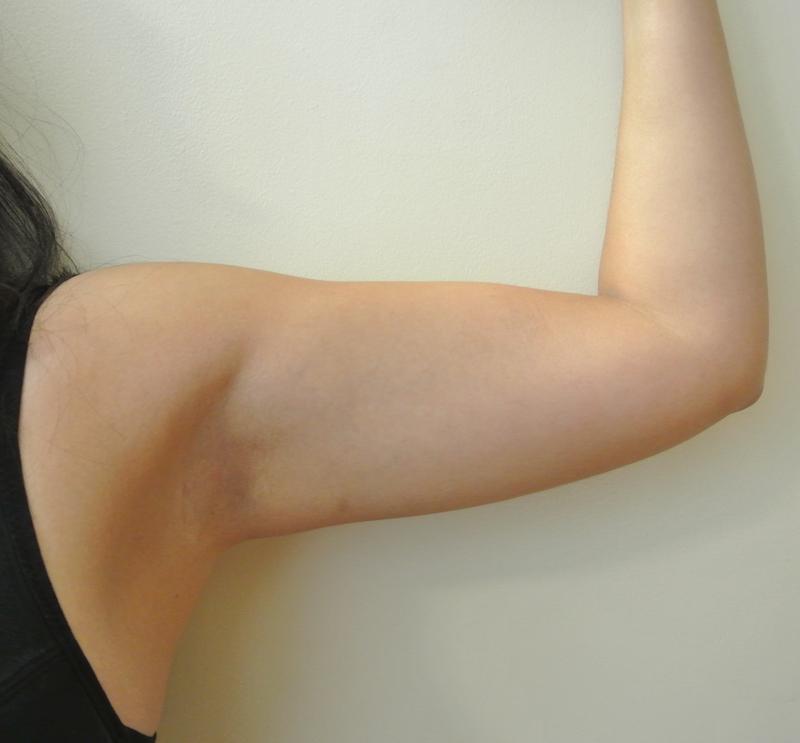 Pre-op liposuction left arm