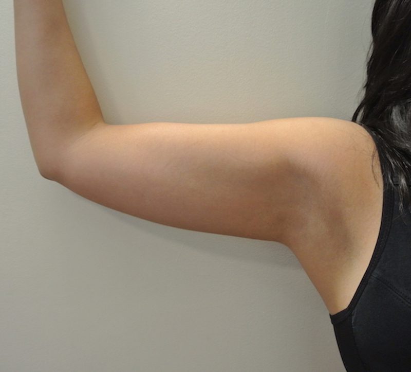 Pre-op liposuction right arm