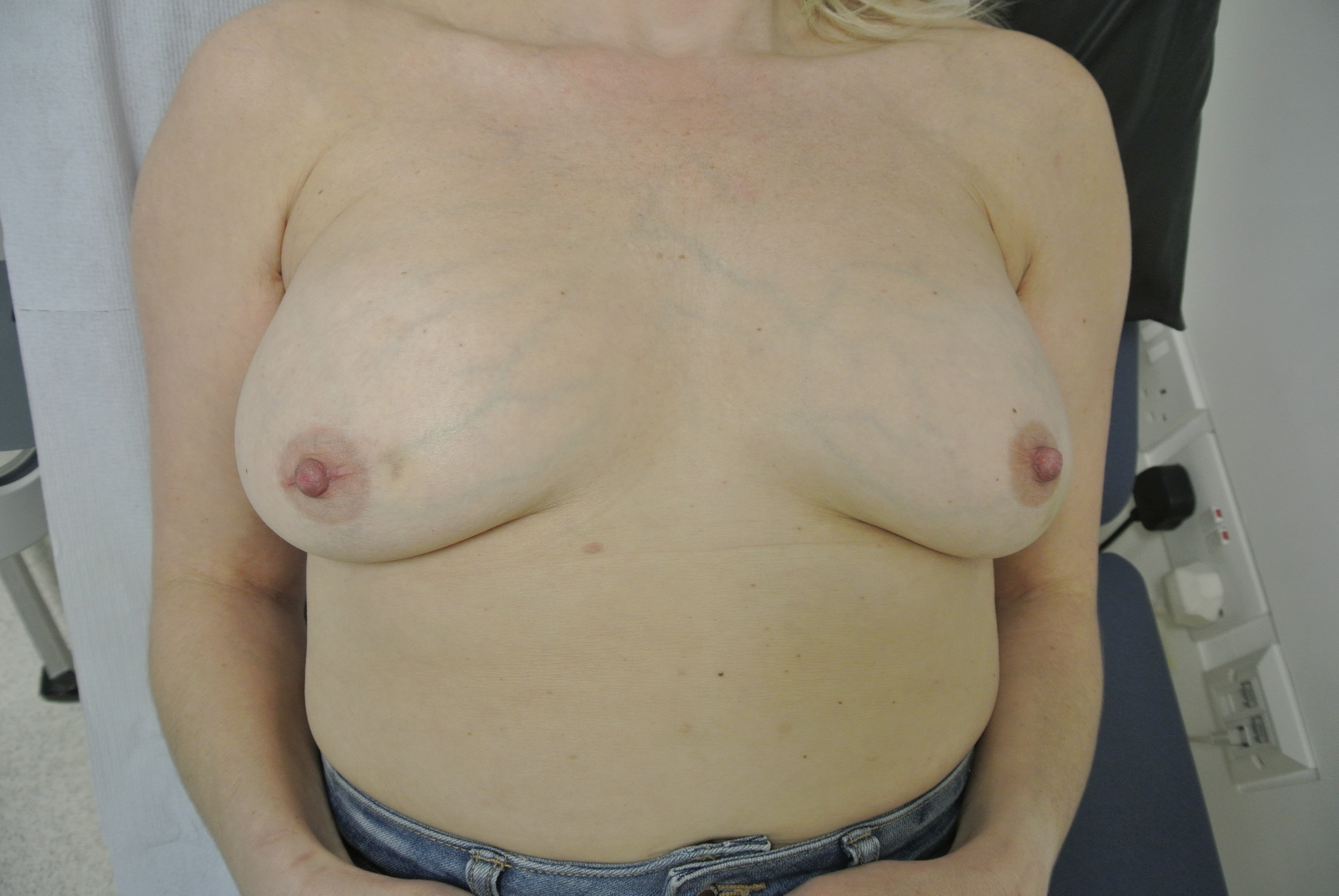 recognition-software-naked-woman-with-inverted-nipples